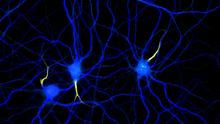 Image of axons and dendrites