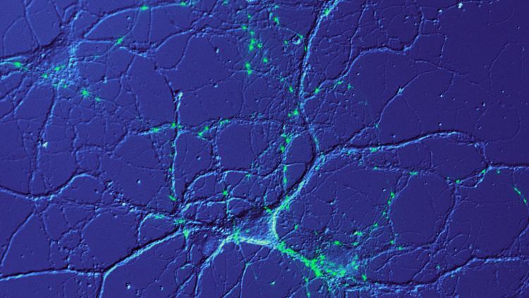 Image of calcium bursts in blue
