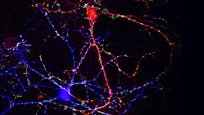 "This image of brain neurons cultured from a mouse shows this interaction: the ""inhibitory"" neuron (blue) sends signals that can prevent the ""excitatory"" neuron (red) from firing."