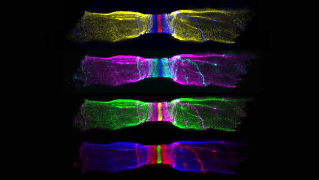 Myelin — a fatty material that wraps around axons (pictured on the left and right of nerve fibers above) — preserves the strength of these signals, allowing them to move quickly along the axon. At each node, or gap in the myelin sheath (center above), electrical signals are amplified, allowing the signal to jump to the next node.
