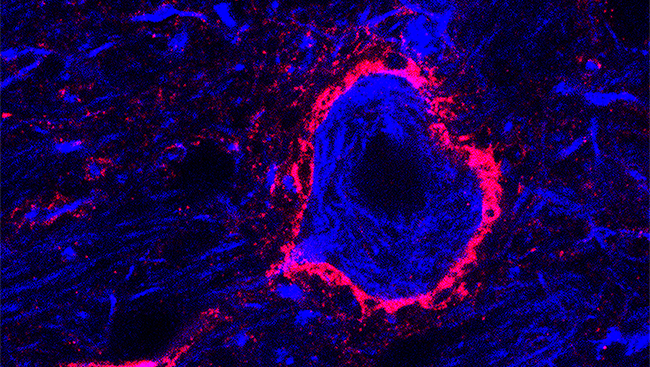 Called perineuronal nets (and pictured here in pink in a mouse brain), these structures help inhibit the signals between neurons and keep current connections intact.