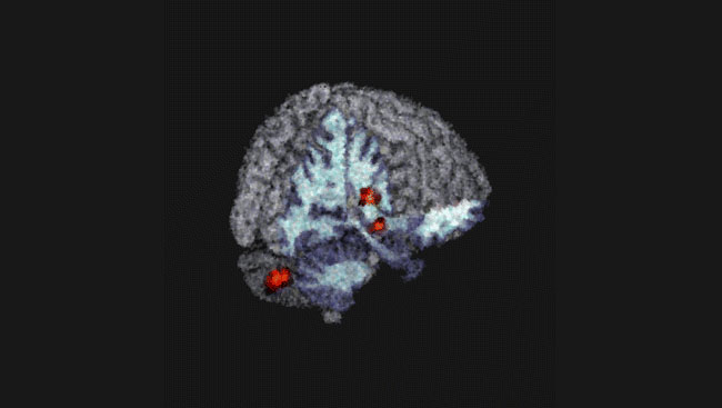Three-dimensional model of the brain showing regions of increased volume in the insula, cerebellar vermis, and substantia nigra in individuals with genetic predisposition for bipolar disorder.