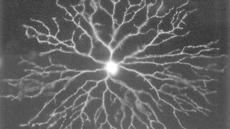 Amacrine Cells