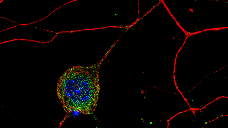 dorsal root ganglion neurons red blue and green
