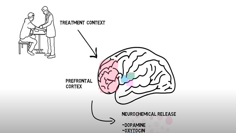 Placebo effect BAVC thumbnail