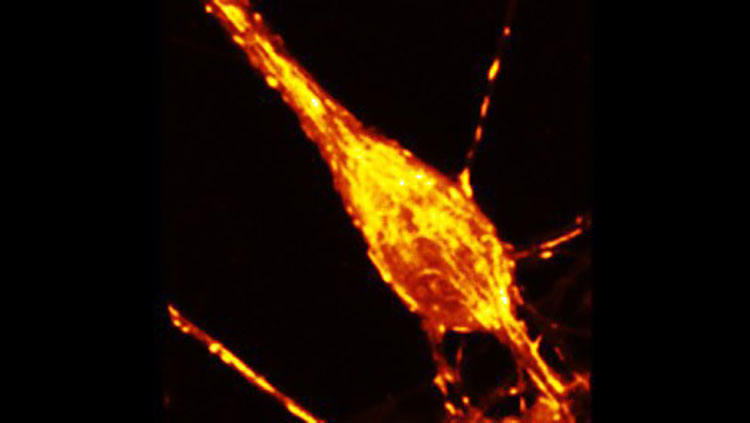 red and yellow calcium neuron black background