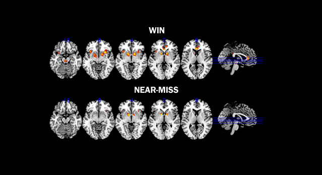 Brain scans of players who almost win a game of chance show similar brain activity in reward pathways to those who actually win.
