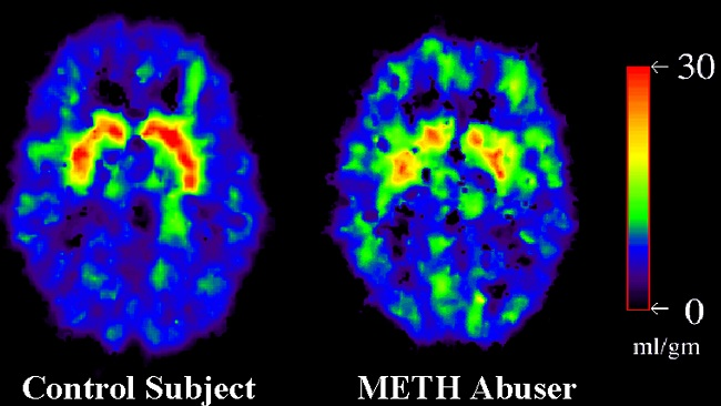 Brain scans from a methamphetamine abuser