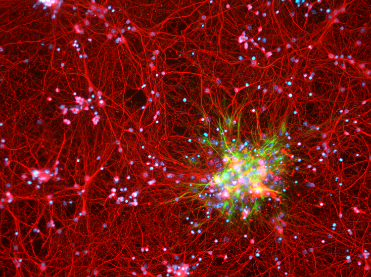 astrocyte red