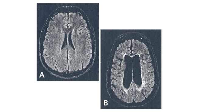 Brain tissue loss scan