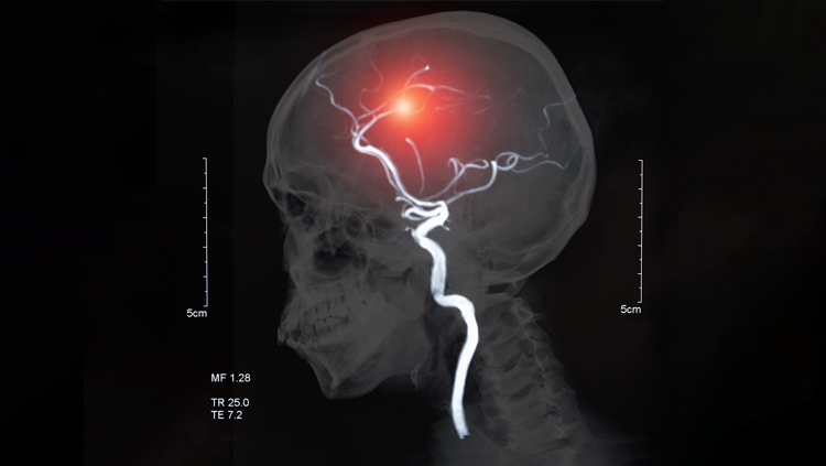 Image of stroke in a brain