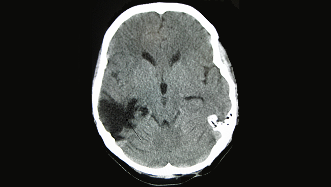 A CT scan of an injured brain. The arrow indicates where the damage occurred, in the empty space within the brain.