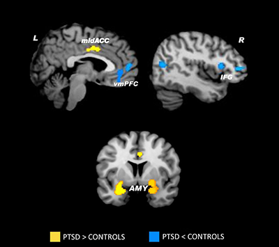 Brain Imaging Study of Person with PTSD and Control