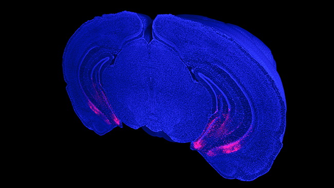 GABA neurons are highlighted in red in the cross-section of a mouse brain.