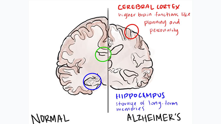 Chart of a brain