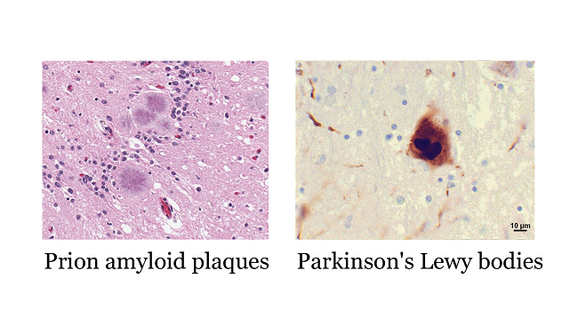 Scan of prion amyloid plaques and Parkinson's Lewy bodies.