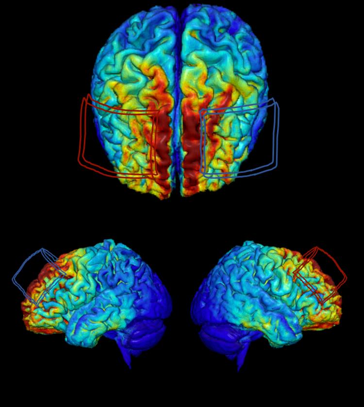 MRI-derived model of brain
