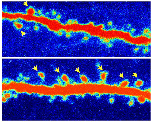 Compared with a control, a rat neuron (in red) treated with ketamine has grown more dendritic spines (shown by yellow arrows).