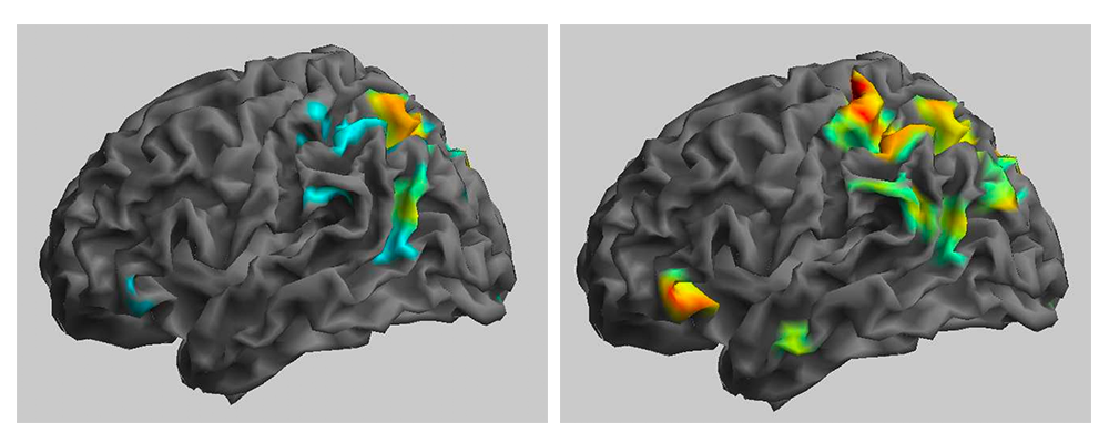 Neural activity prior to a ketamine infusion (on the left) and six to nine hours after an infusion (on the right).