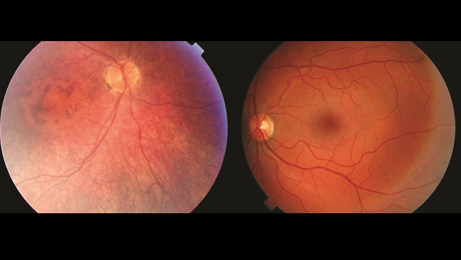 Retinal photographs show how the eyes of a healthy patient and an individual with Leber congenital amaurosis differ.
