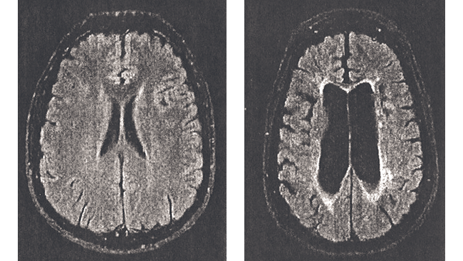 Brain scans show what happens during multiple sclerosis