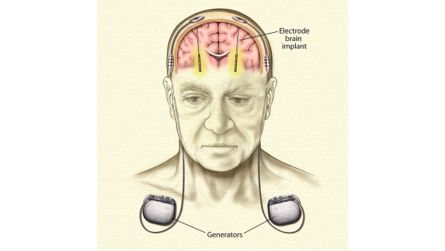 Illustration of electrodes implanted into the brain