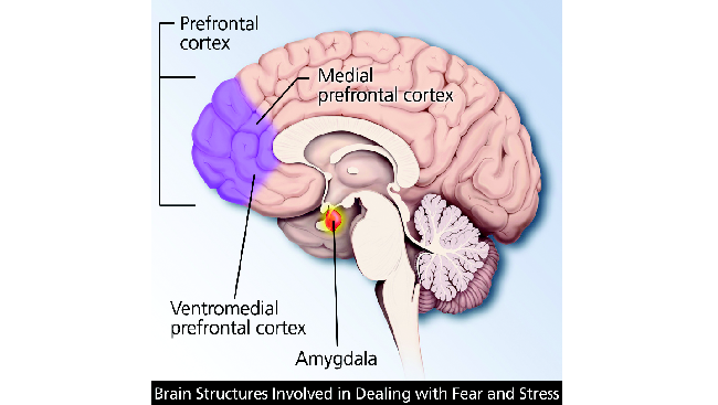 The areas of the brain involved in Post Traumatic Stress Disorder