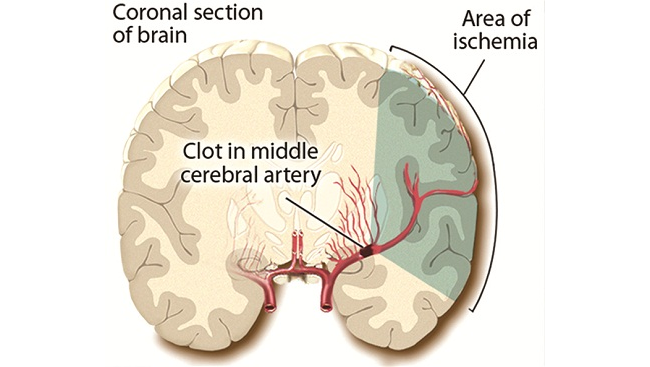 A blood vessel is clogged by a blood clot