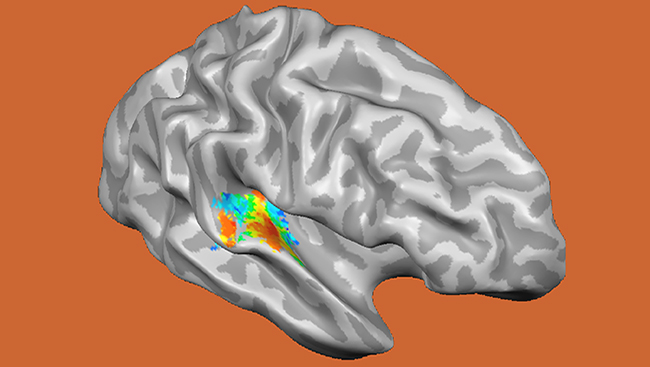 Functional magnetic resonance imaging (fMRI) noninvasively measures brain activity changes deep inside the brain. Scientists used fMRI to measure changes in brain activity in the auditory cortex as people listened to sound frequencies, ranging from low (20 Hz) to high (8000 Hz), displayed in the red-to-blue color scale indicated above.