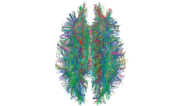 Scientists have previously been able to map the brain using technology such as MRI tractography, used here to map white matter tracts in the human brain.