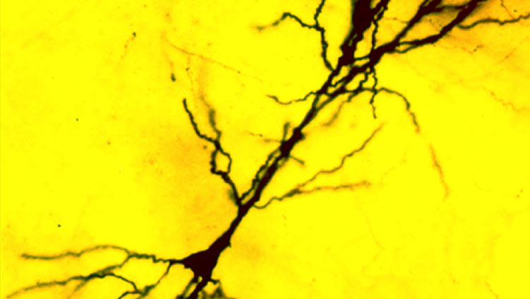A single CA1 pyramidal cell from hippocampal area