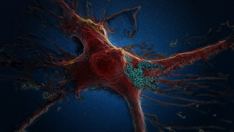 Image of brain astrocyte cell