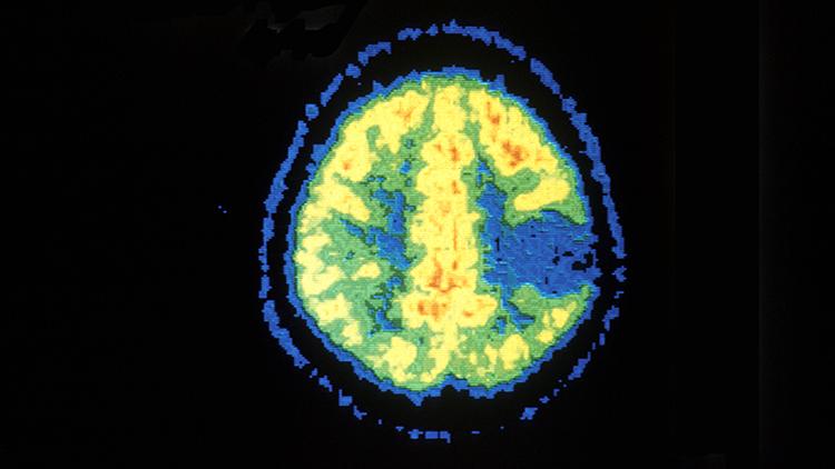 PET scan image