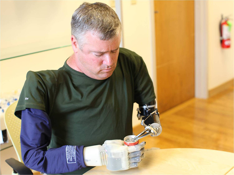 A man with two prosthetic arms opens a can.