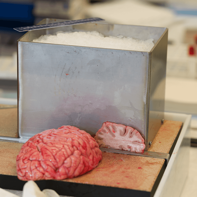 Sliced human brain