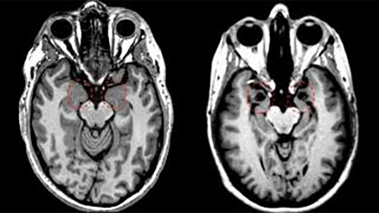 Human brain divided