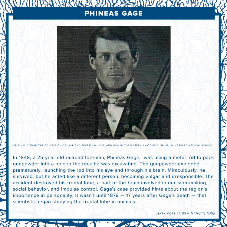 Phineas Gage Brian Byte