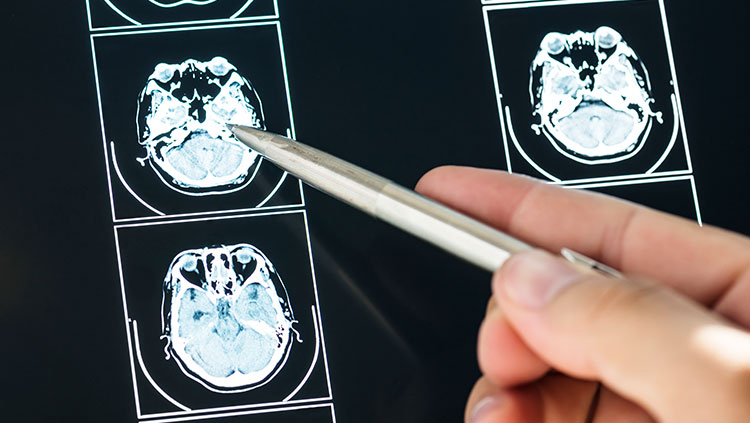 hand holding a pen points to scans of a brain