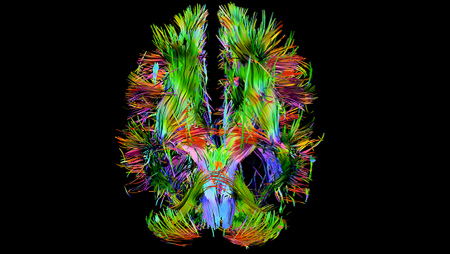 This brain shows lost and irregular connections.