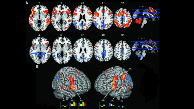 Brain scans comparing the activity of jazz pianists interacting during improvisation show increased activity (red) in the lateral prefrontal cortex and language and sensorimotor areas, and decreased activity (blue) in the angular gyrus.
