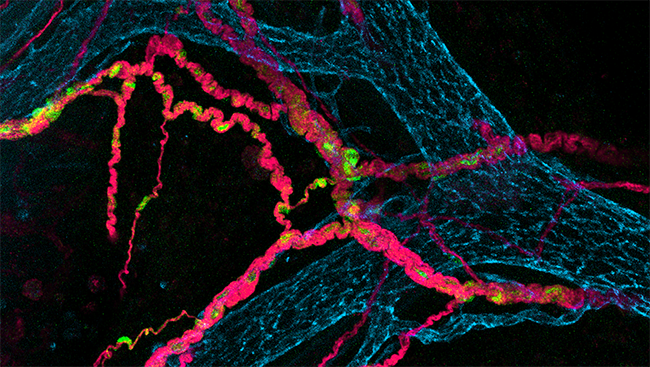 This image shows the enteric nervous system of a four-day-old mouse, with blood and lymphatic vessels (blue), neurons (pink), and support cells called Schwann cells (green).