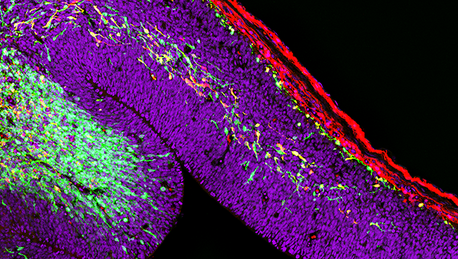 In the image above, interneurons (green and yellow) are travelling to the developing cerebral cortex in a young mouse brain, forming highways of migratory cells.