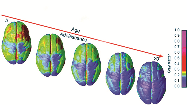 Brain images showing change affected by age