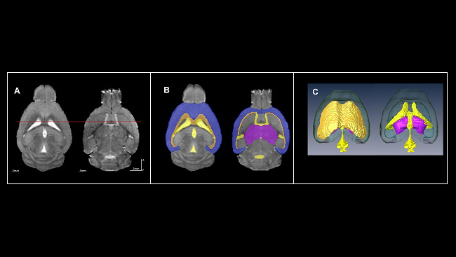 MRI images of the brains of mice exposed to alcohol