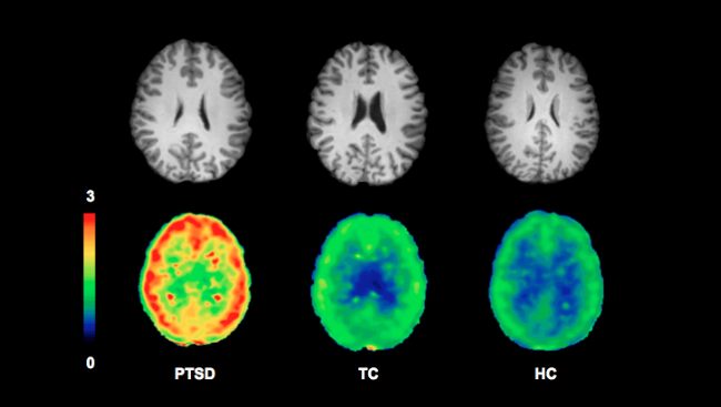 In this image, brightness corresponds to the number of receptors, highlighting the difference between the PTSD brain on the left from the two control brains.