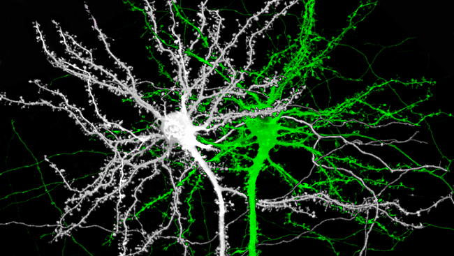 Dendritic spines.