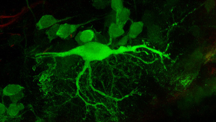Image of a a reticulospinal neuron in a zebrafish