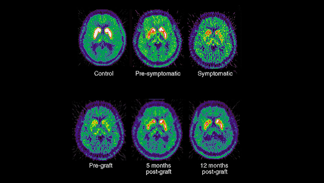 Images from positron emission tomography (PET) reveal the disrupted dopamine signaling in the brains of Parkinson's patients compared to healthy subjects.