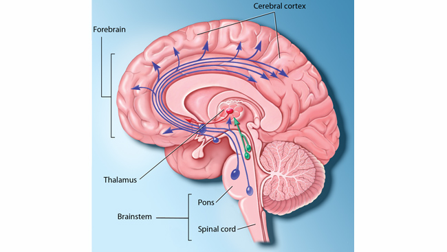 Diagram of the parts of the brain directly involved with sleep