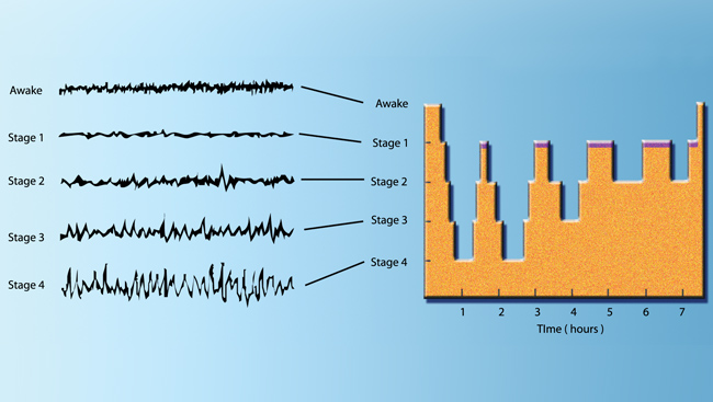 This chart shows the brain waves of a young adult recorded by an electroencephalogram (EEG) during a night's sleep.
